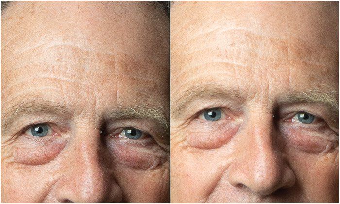 Diptych photo showing the difference between setting the white point. and original image in Photoshop portrait editing