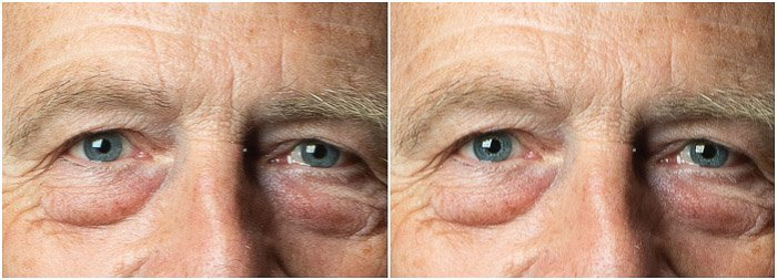 Portrait detail diptych Before and After the eye sharpening on Photoshop
