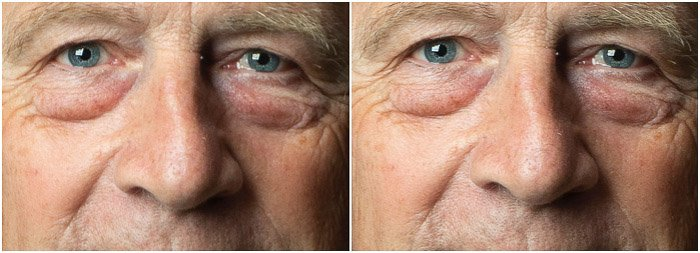 Portrait detail diptych Before and After the skin sharpening on Photoshop