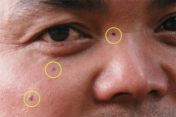 A screenshot of how to remove skin imperfections with Photoshop