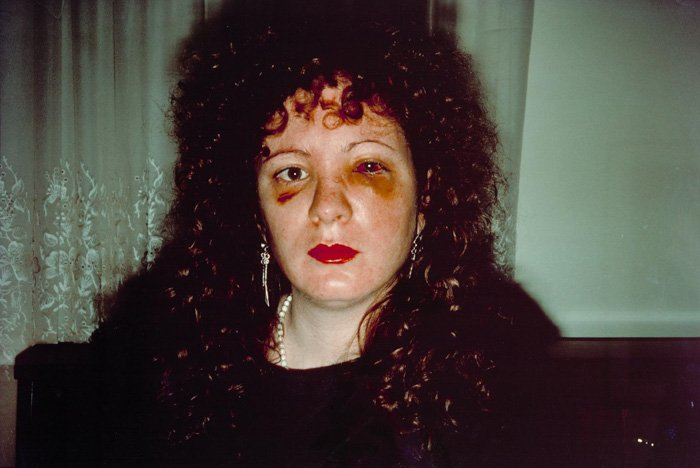 Nan one month after being battered- Nan Goldin (1984)- controversial photos