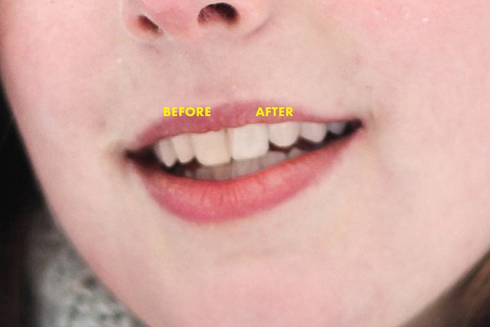 A close up portrait of a female models mouth before and after Photoshop teeth whitening