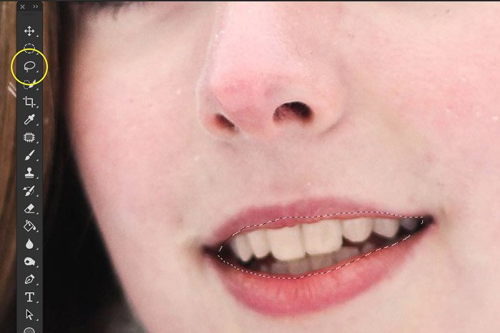 A screenshot showing how to use the lasso tool to select yellow teeth in Photoshop