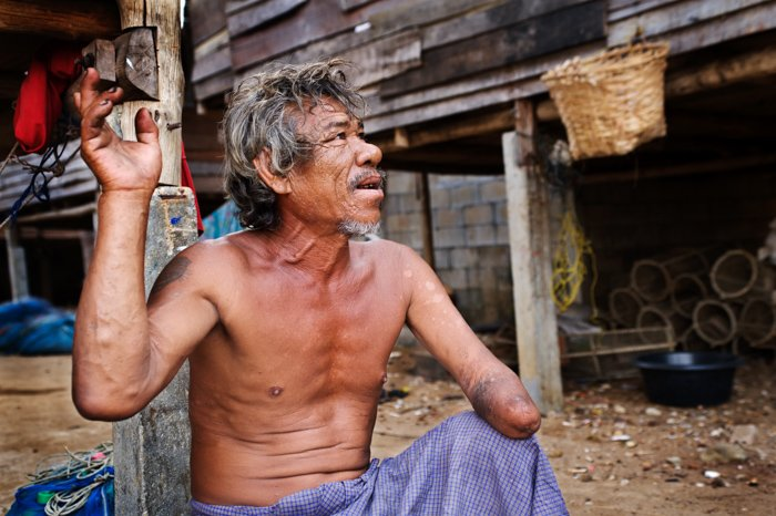 An environmental portrait photography shot of a Moken sea gypsie man in south Thailand telling us the story of how he lost his hand.